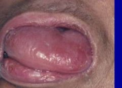 -Enlargement, hypertrophy of tongue -Associated w/ hypothyroidism, Down syndrome