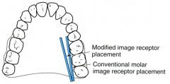 Interproximal contacts are in the mesiodistal relationship to the midsagittal plane Paralleling the film to the buccal surfaces Place the film slightly diagonal with the front edge of the receptor a greater distance from the lingual surfaces of th...