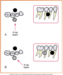 When the dental structure or object seen in the second appears to have moved in the same direction as the shift of the PID, the it is positioned to the lingual When the dental structure or object seen in the second appears to have moved in the opp...
