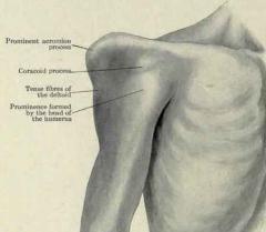 Cause : Abduction et rotation externe excessive, souvent antérieur (vers l'avant). Ce mouvement peut causer des fractures, déchrer le labrum (3), et blesser les muscles et les nerfs.  Diagnostic : L'acromion est accentué. La tête de l'...