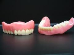 1) Impression Surface (where the existing soft tissue lies)  2) Denture Border(rests in the vestibule)  