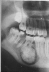 A Benign odontogenic tumor.   