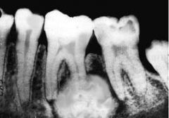 1st molar MN or MX   