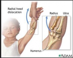 Nursemaid's elbow; partial dislocation of elbow while the hand is raised above the head with palm facing forward
