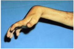 Injury to muscle of forearm, deformity of hand/ wrist/ fingers--> claw; stuck in flexion