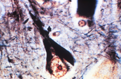 What hallmark of which disease is depicted here?
