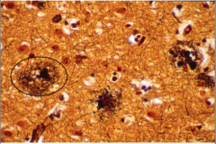 What is the relevance of Down's Syndrome to a discussion of Alzheimer's? What is shown in this picture?