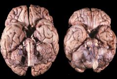 Which brain is diseased?