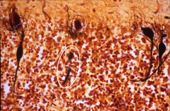 What is depicted here? What disease is this?