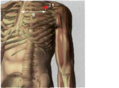 6 Tsun lateralmente hasta la línea media anterior, en la fosa infraclavicular, por encima de la apófisis coracoides
