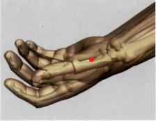 en la depresión proximal de la primera articulación  metacarpofalángica, en el centro del primer hueso  metacarpiano, en el límite entre la carne roja y blanca
