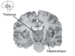 Processes much sensory information that is destined for long-term storage in memory within cortical circuitry.