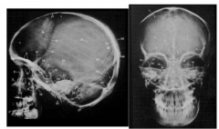 Native X-ray diagnostics indirectly show pathologies of the brain and spinal cord