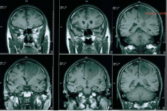 - Strong in fatty tissue - CSF = dark - T1 MRI differentiates gray-white and shows detail - Infarctions are visible