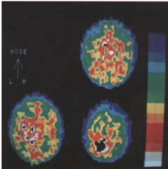 - Evaluation of the distribution of radioactive isotopes by a computation method (like CT, MRI) to show perfusion in the brain - NOT metabolism - Injection of a radiotracer, for instance 99mTc or 123I.