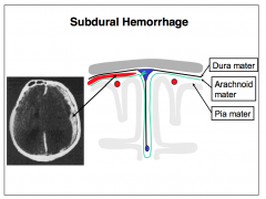 Subdural hemorrhages commonly reflect trauma- induced ruptures of the delicate veins that traverse the meningeal layer of the dura from the subarachnoid space. Bleeds arising from tearing of the meningeal dura are also subdural. Because the press