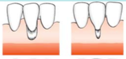 Marginal tissue recession that does not extend to the MGJ.    There is no periodontal loss (bone or soft tissue in the interdental area