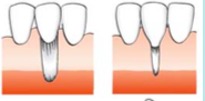 Marginal tissue recession that extends to or beyond the MGJ.    There is no periodontal loss (bone or soft tissue in the interdental   area.