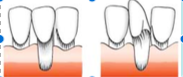 Marginal tissue recession that extends to or beyond the MGJ.    – Bone or soft tissue loss in interdental area or there is malpositioning   of teeth.