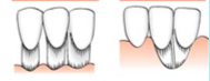 Marginal tissue recession that extends to or beyond the MGJ.    Bone or soft tissue loss in interdental area is so severe that root   coverage cannot be anticipated.