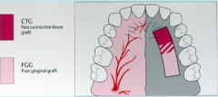 -Safe zone=canine-2nd premolar (GP nerve+ vessel)   -Typically want 2mm thickness (will contain more glandular tissue thanFGG)   -Heal by primary intention