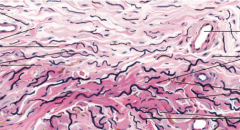 What type of tissue is this? Where can it be found? Identify important structures.