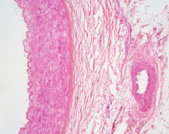 What type of tissue is in the wall of the artery/vein? Identify important structures.