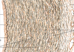 What structure is this? Identify the squiggly black lines.