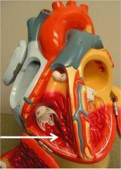 Papillary muscles Chordae tendineaeSemilunar pulmonary valvePulmonary trunck
