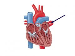 Four veins opening into the left atrium form the lungs