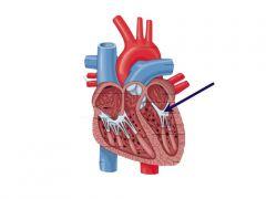 valve of the left atrioventricular orifce