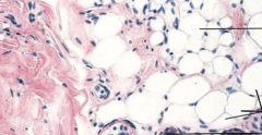 What type of connective tissue is this?