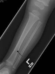 Toddler's fracture Radiographs; views; AP and lateral views   tibia and fibula are required -ipsilateral knee and ankle must be evaluated to rule out concomitant injury -findings- Toddler's fracture are nondisplaced spiral tibial shaft fracture