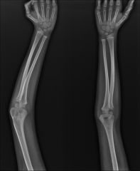 8-year-old boy has a cubitus varus deformity of his left elbow after a supracondylar humerus fracture was treated in a splint. What is the most common cause of this deformity?