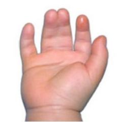 Fig A depicts a child w/ syndactyly. Followg surgical tx, the MC complication involves which of the followg?  1- Nail plate; 2-Nail bed; 3-Web commissure; 4-Radial digital N; 5-Radial digital A