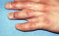 Web creep, MC complication, is the distal migration of the web commissure seen in surgically corrected syndactyly pts; caused by abnormal scar tissue formation & increasg growth of underlying osseous structures. Informing parents of this complicat...