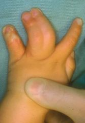 surgical release of involved digits in syndactyly vs acrosyndactyly perform at what age?