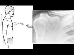 Help visualize the AC joint. Shows AC joint disease and distal clavicle osteolysis.
