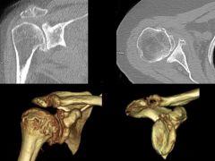 glenoid version for total shoulder arthroplasty