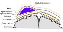 - 1-2% des naissances vivantes - Force mécanique. D'origine traumatique (déplacement du scalp par rapport au crane) - Entre l'os et le périoste; le plus souvent pariétal - Bosse tendue, fluctuante, limitée par les sutures. Palpation d'un dépression. As