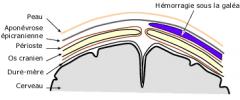 - Rare - Déplacement du scalp par rapport au crâne (aidé parfois par coagulopathie sous-jacente) - Entre l'aponévrose et le périoste, sur tout le scalp - Masse ferme et fluctuante - Extension post-natale, résorbé en quelques semaines - Anémie, ictère