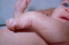 - Rare - Distal: C7, C8, T1 - Doigts en flexion, absence de grasping. Les parésies des segments supérieurs du plexus brachial peuvent être compliquées d'une atteinte du nerf phrénique, la paralysie diaphragmatique pouvant causer une détresse respiratoir