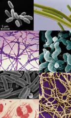 Un procaryote est un être vivant unicellulaire dont la structure cellulaire ne comporte pas de noyau. Les procaryotes ne possèdent que très rarement des organites.