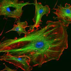 Assure le soutient mécanique et le maintient de la forme de la cellule. Fournit des points d'ancrage à de nombreux organites et même à des enzymes du cytosol. Il est composé de microtubules, de microfilaments et de filaments intermédiaires.
