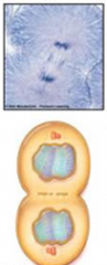 What stage of Mitosis is this?
