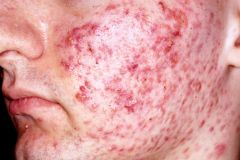 1. inflammatory condition of the skin that is most prevalent during adolescence. 2. Severe acne is more common in men than in women due to higher levels of circulating androgens. other RFs include puberty, Cushing's syndrome, oily complexion and ...