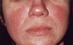 - a chronic condition resulting in reddening of the face (mainly the forehead, nose, and cheeks). If often appears very similar to acne, but unlike acne it first starts in middle age - mostly affects caucasian women between 30-50 years of age - ...