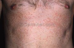 Diagnosis and treatment of tinea versicolor