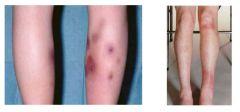 Treatment of erythema nodosum