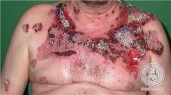 - autoimmune blistering condition resulting in loss of normal adhesion between cells (acantholysis) - starts in oral mucosa, may become generalized - blisters rupture, leaving painful erosions - most commonly affects elderly people, often FATAL...